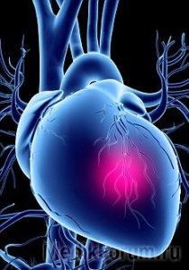 От инфарктов чаще умирают здоровые