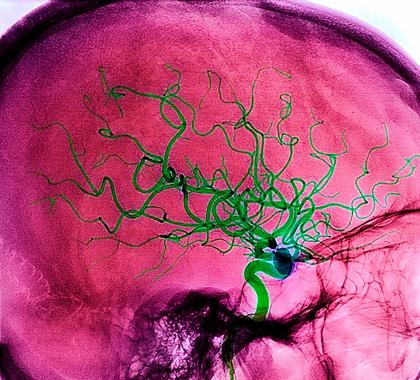 Вторичные нарушения при инсульте может предотвратить «критический белок» ципин