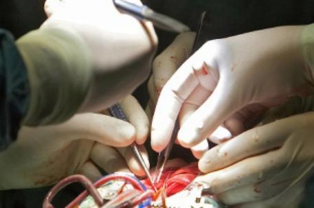 Операция на сердце приводит к ухудшению памяти и когнитивных процессов