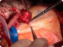 Использование для коронарного шунтирования правой маммарной артерии предпочтительнее использования лучевой артерии