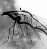 Хирургическое лечение инфаркта: остановить регенерацию клеток, чтобы спасти пациента