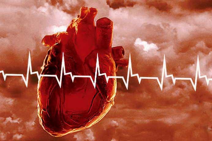 В сердечных болезнях виноваты гены
