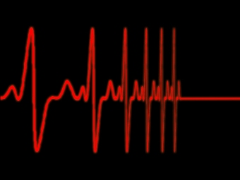 Обмороки – предвестники внезапной остановки сердца?