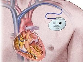 Американские хирурги установили кардиостимулятор 15-минутному ребенку