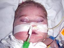 Мальчик с набором редких дефектов выжил вопреки прогнозам врачей