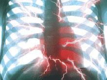 Костный мозг станет панацеей для сердечников