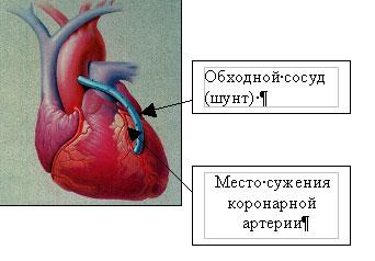 Аортокоронарное шунтирование сердца: суть процесса