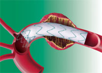 Выживаемость ниже для пациентов после пересадки сердца, чьи артерии повторно блокируются после стенирования