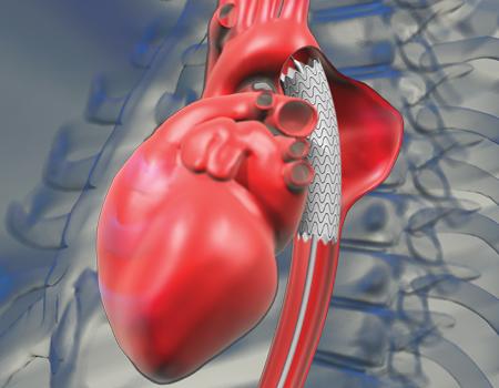 По изменению плотности стенок аорты можно предсказать гипертонию
