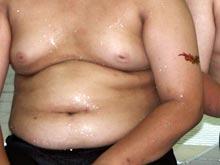 Лишний вес делает ребенка 40-летним сердечником, предупреждает Оксфордский Университет