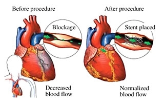 В Москве обсудили последние тенденции и будущее лечения острого инфаркта миокарда