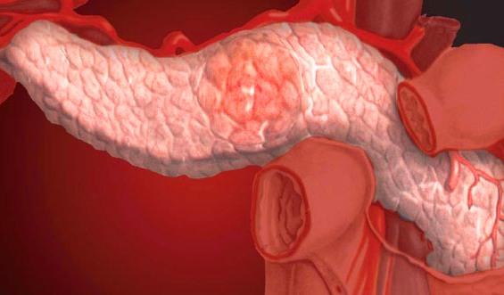 Хронический панкреатит. Причины заболевания и симптомы