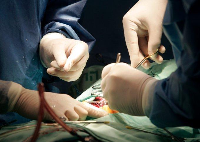 В Кузбассе успешно прошла операция по пересадке сердца