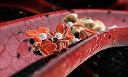 Продукты, понижающие уровень холестерина в организме