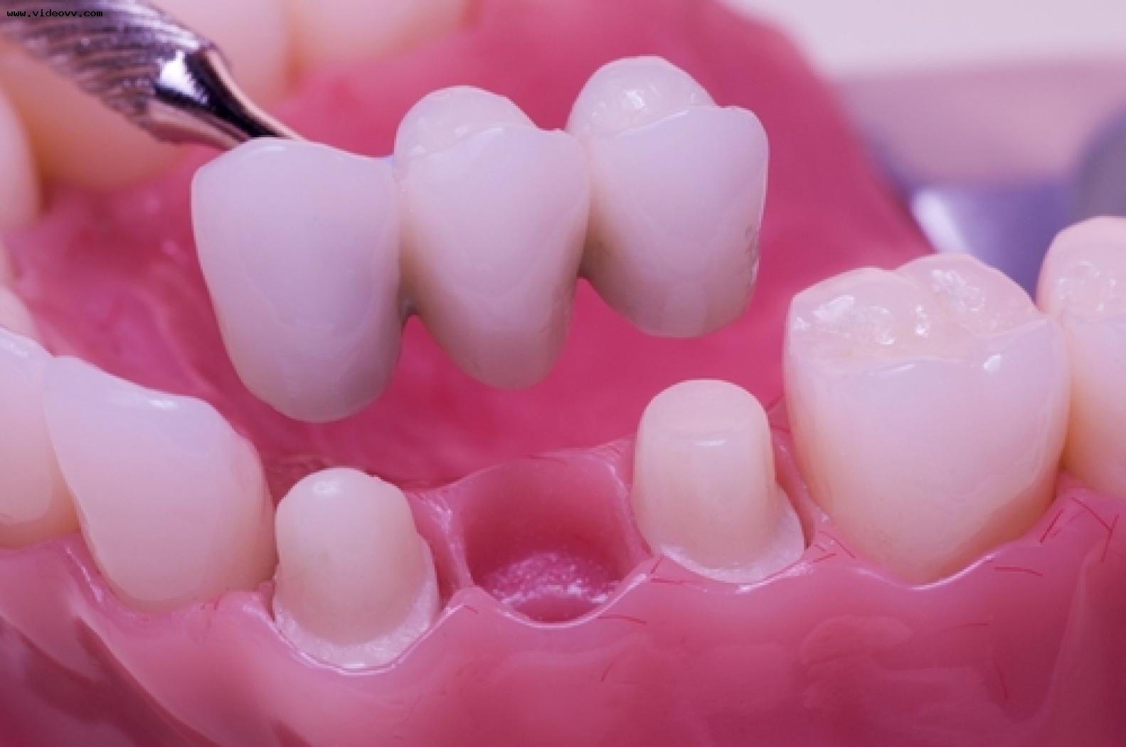 Основные преимущества протезирования зубов