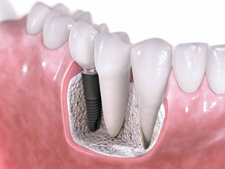 Самые популярные виды зубных имплантов