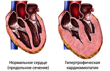 Гипертрофическая кардиомиопатия – Обзор