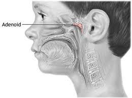 Нарушение слуха из-за аденоидов у маленьких детей