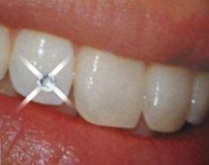 Чем меньше зубов, тем больше вероятность инфаркта