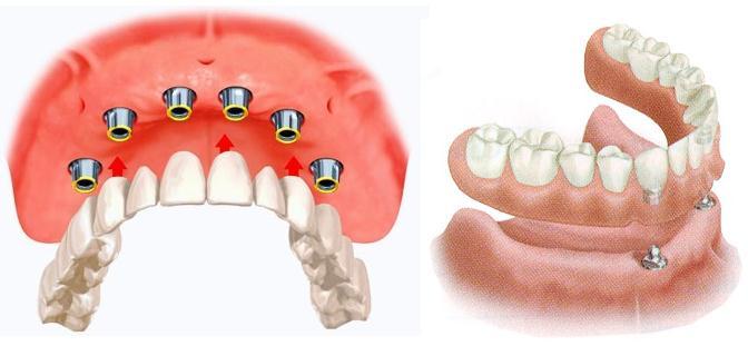 Услуги по восстановлению зубов