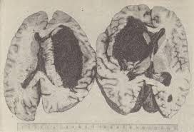 Кровоизлияние в мозг по типу геморрагической инфильтрации