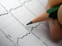 Аритмия сердца – нарушения правильной работы