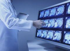 Погодные изменения могут спровоцировать инсульт
