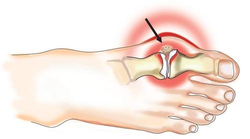 Краткие сведения об артрите