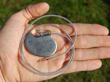 Беспроводная зарядка кардиостимуляторов возможна