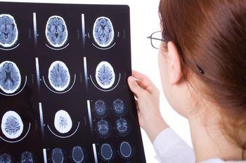 Все о кисте головного мозга