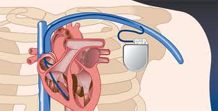 iPad 2 блокирует работу кардиостимулятора