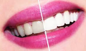 Отбеливание зубов: что нужно знать(методы и средства)