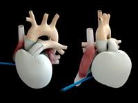Carmat приступил к новому этапу исследований кардиопротеза