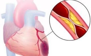 Сенсация: ученые вырастили жизнеспособную сердечную мышцу из стволовых клеток