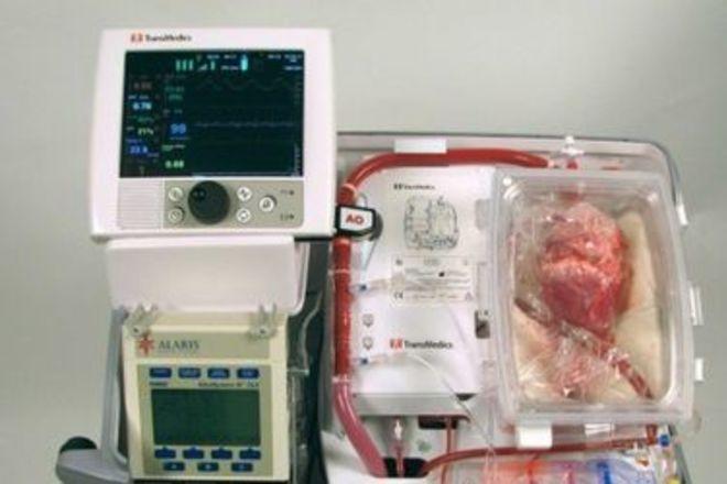 Впервые в мире пациенту пересадили сердце от мертвого донора