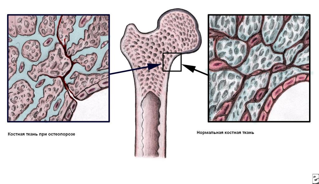 Риск развития остеопороза у азиатских женщин