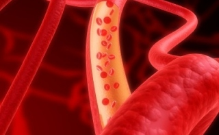 IQ связывают с сердечными заболеваниями