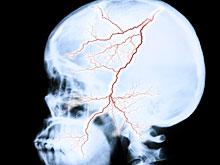 Медицинская революция: удалось увеличить временное окно для помощи при инсульте