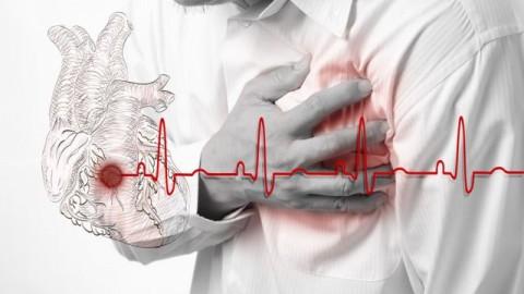 Названы главные причины инфаркта