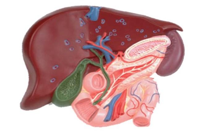 Рак желчного пузыря: причины, симптомы, лечение и прогноз