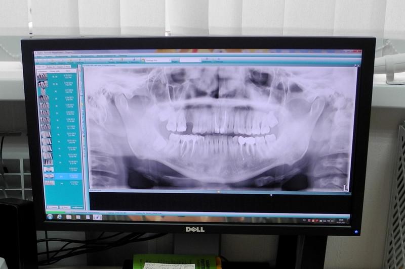 Получение лицензии на рентген
