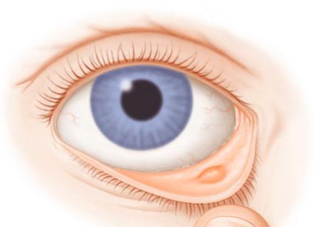 Почему появляется заболевания глаз?