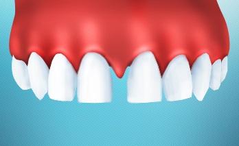 Основные способы борьбы с диастемой (промежутки между зубами)