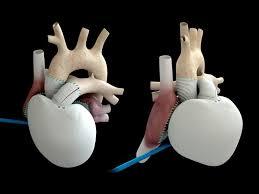 Медики начали испытывать искусственное сердце