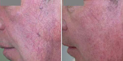 В чем состоит лечение купероза лазером?