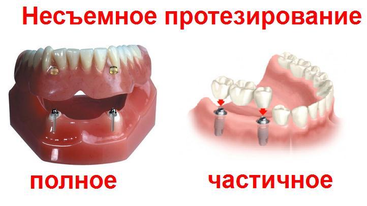 Качественно выполненное протезирование, как залог здоровья для всей полости рта
