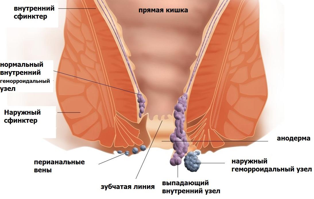 Народные средства для лечения геморроя