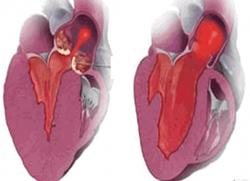 Все о гипотрофии левого желудочка сердца