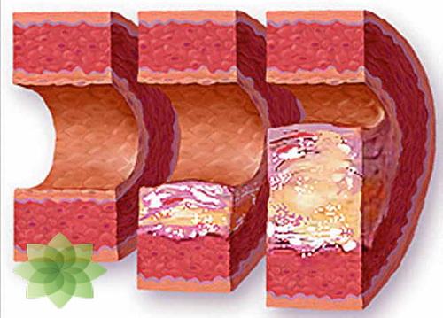 Причины и стадии гипертонии. Возможные последствия заболевания