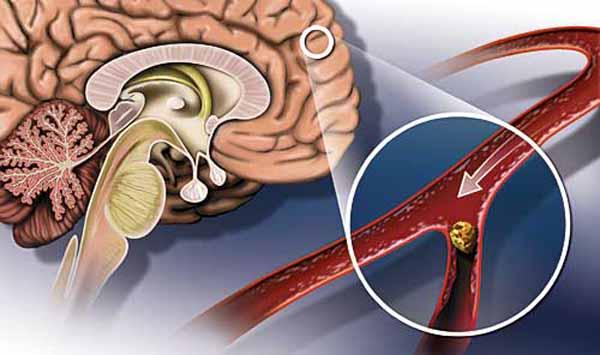 Как обезопасить себя от инсульта головного мозга?